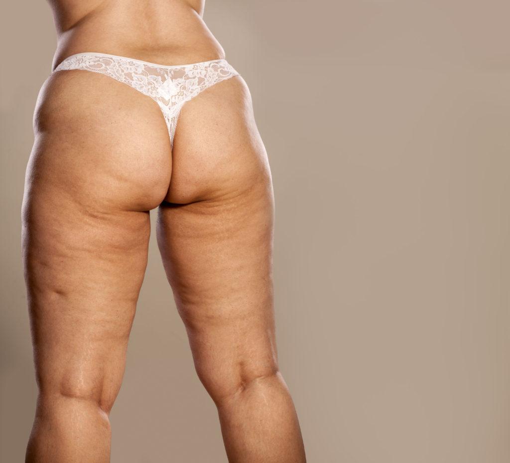 Femme pleine de cellulite
