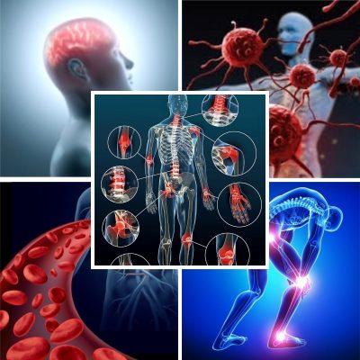 symptomes& douleurs